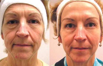 Microcurrent Lifting Facial
